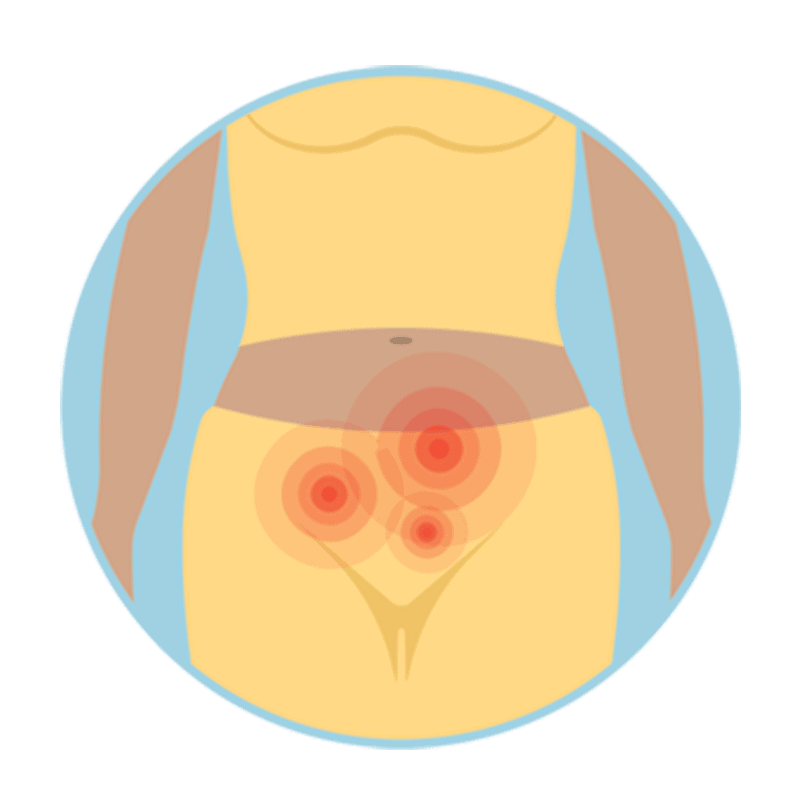 Endometriosis-2